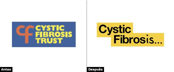 comparacion_fibrosis_logos
